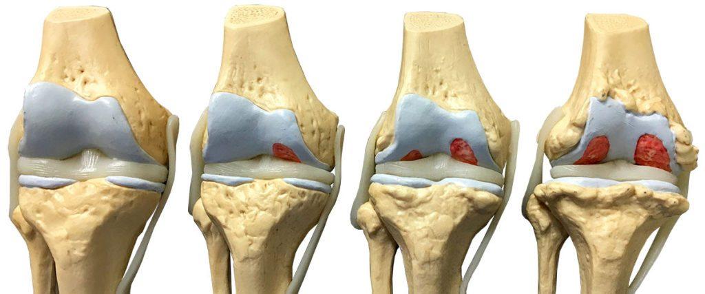 1 июля в Клинике «РЖД-Медицина» Новосибирск была проведена эмболизация артерий по поводу артроза коленного сустава.
